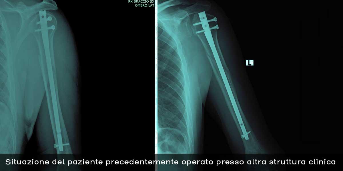 1_Radiografia_spalla_frattura_5