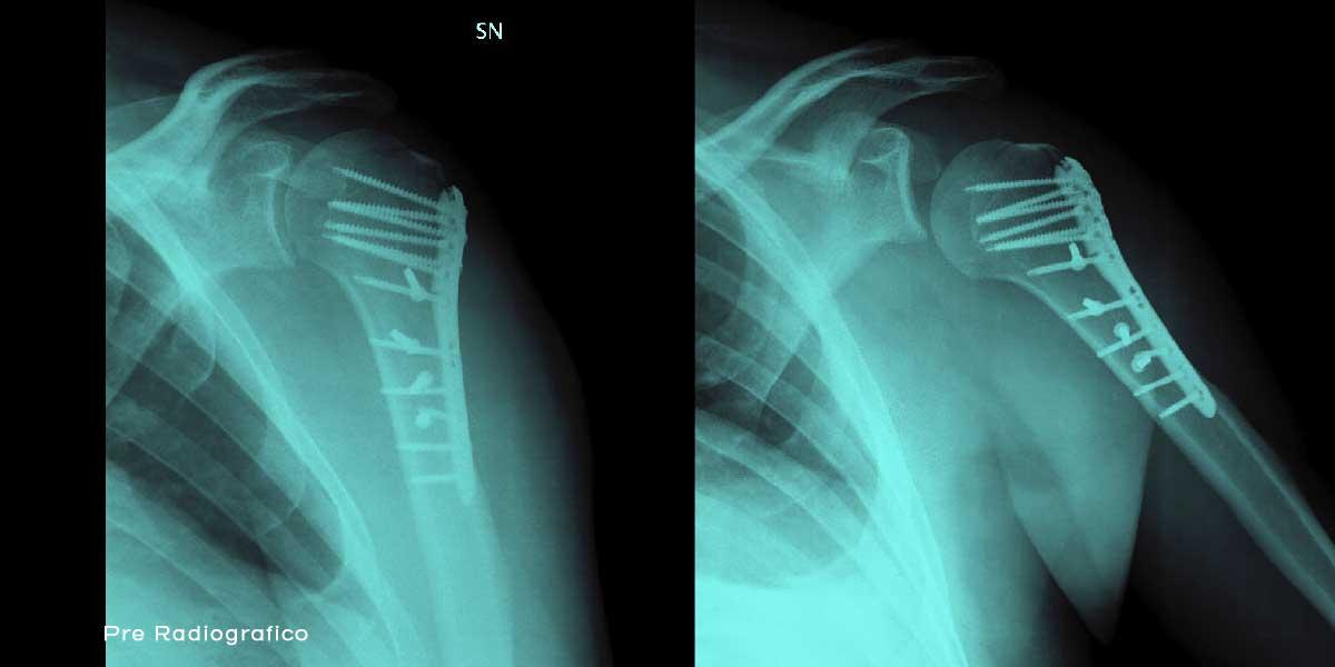 F3_6-Radiografia-frattura-spalla_con_protesi