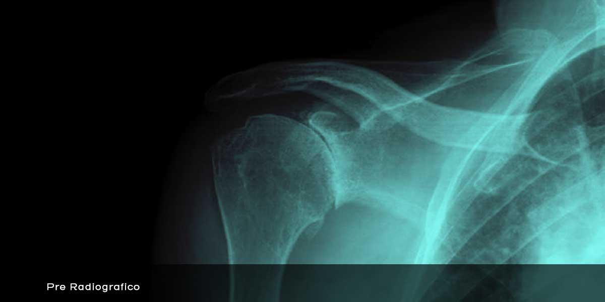 F9_2-artrosi-eccentrica-con-dolore-e-limitazione-funzionale