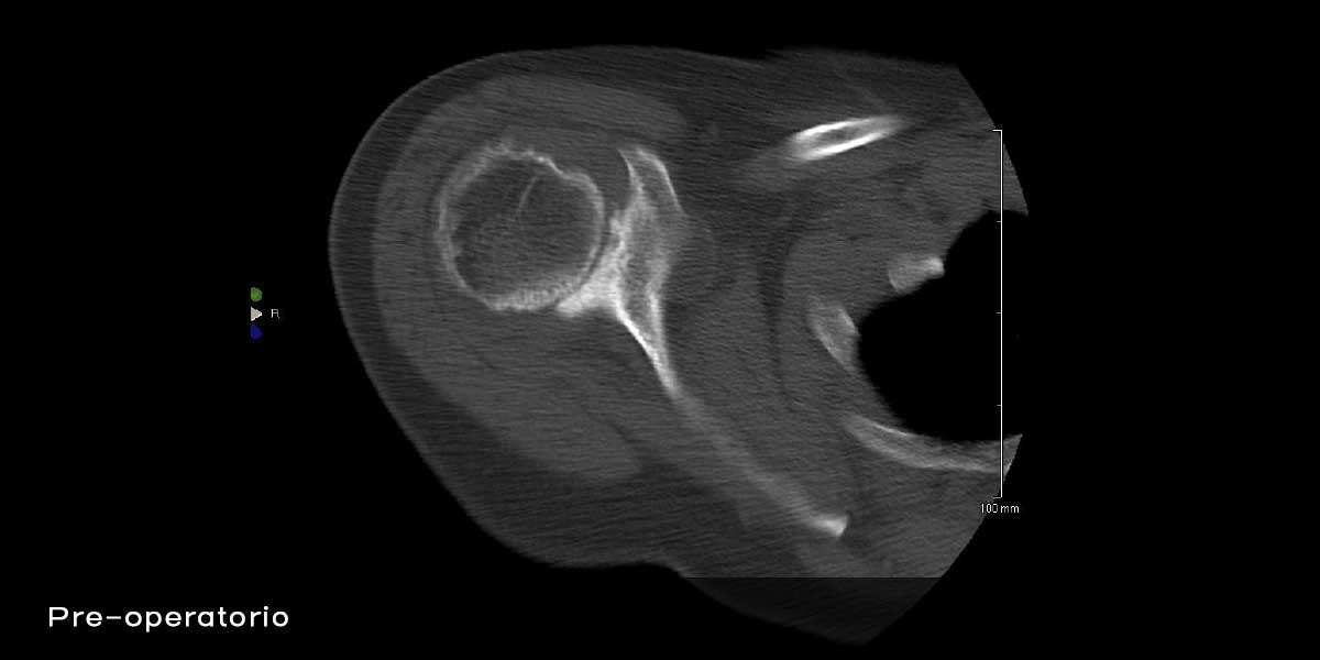 F9_9-risonanza_magnetica_artrosi-eccentrica-con-dolore-e-limitazione-funzionale