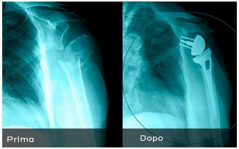 Radiografia_frattura_omero_protesi-1