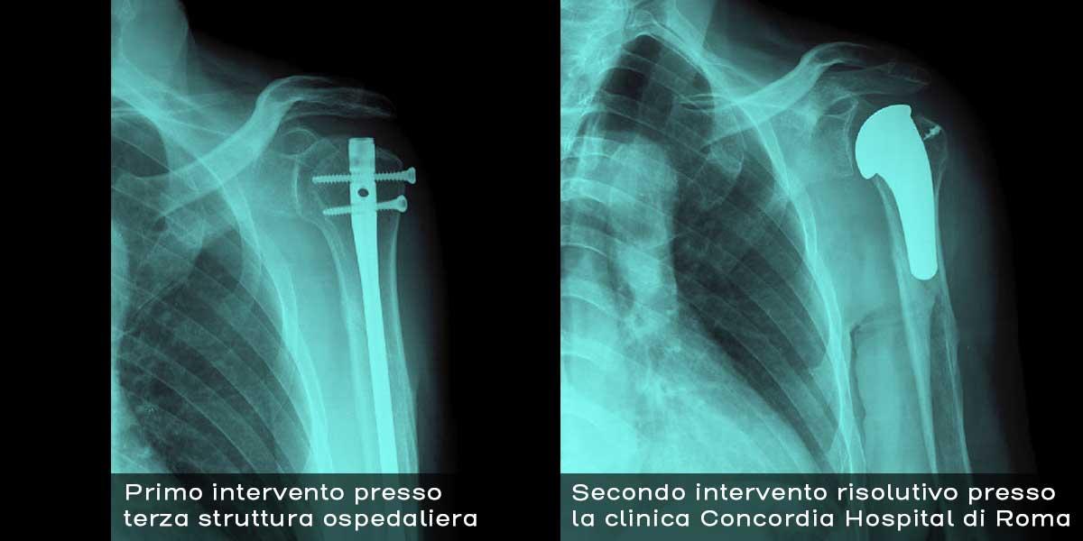 Radiografia_spalla_frattura_sinteisi_Prima_Dopo-3